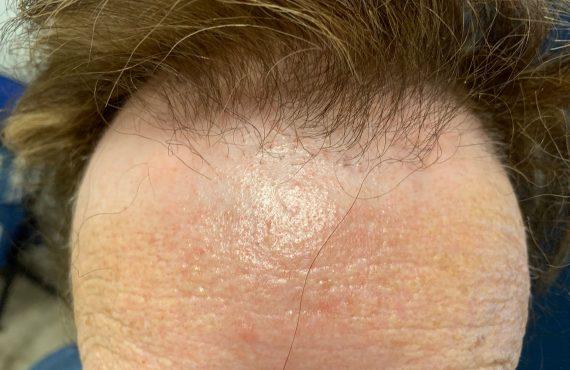 Alopecia cura