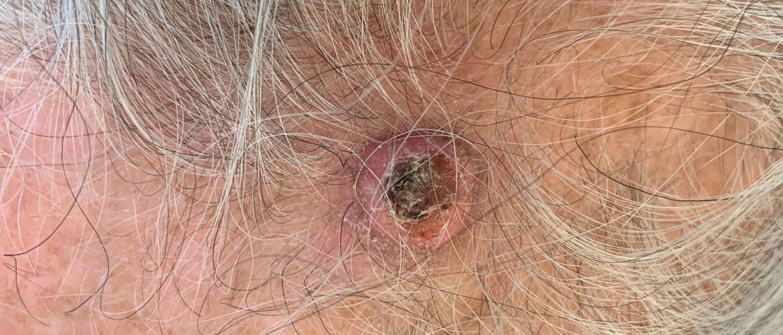 Tumori della pelle