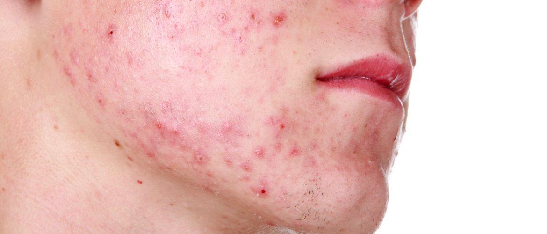 acne a Verona
