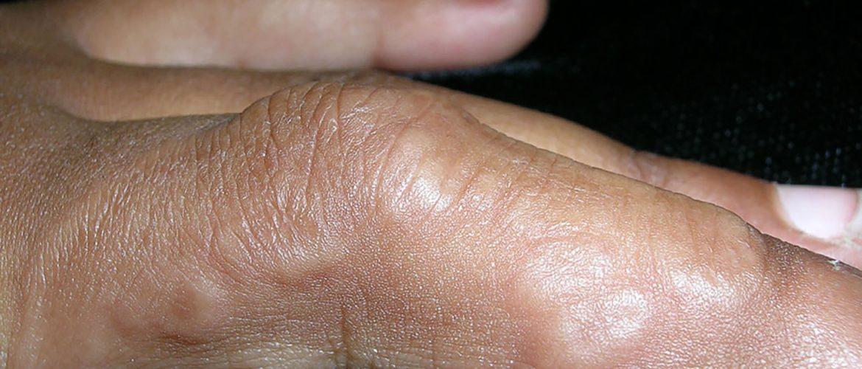 Granuloma anulare