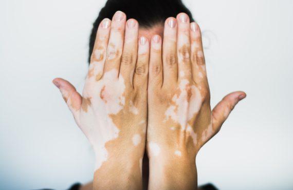 macchie bianche della pelle