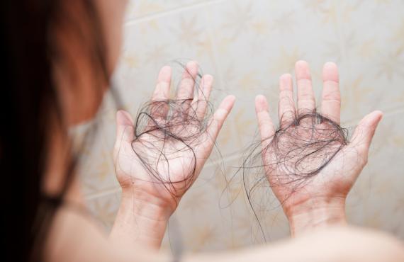 tricologo verona caduta dei capelli integratori