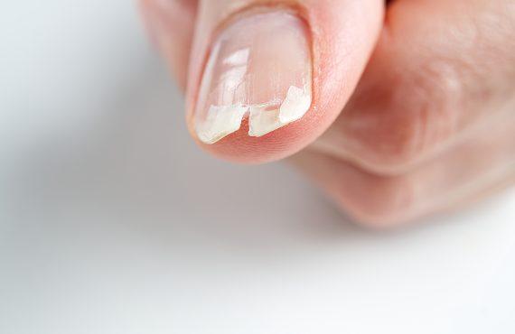 dermatologo verona unghia psoriasi