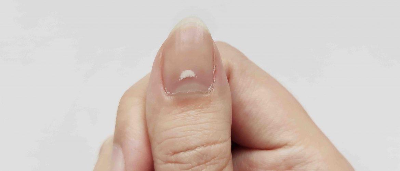 unghie bianche dermatologo verona