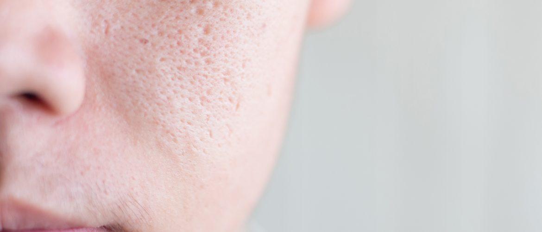 cura dei pori dilatati